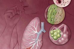 Cùng tìm hiểu bệnh viêm phổi mắc phải tại cộng đồng