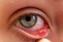 Viêm bờ mi mắt: Nguyên nhân và cách điều trị hiệu quả