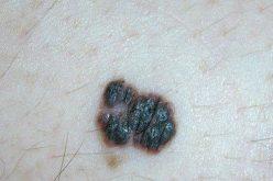Các dấu hiệu nhận biết ung thư da phát triển từ mụn ruồi