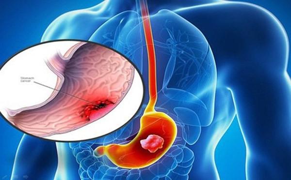 Biểu hiện của bệnh ung thư dạ dày