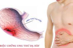 4 dấu hiệu cảnh báo bệnh ung thư dạ dày đang phát triển