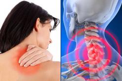 Giải pháp điều trị và phòng ngừa tình trạng đau vai gáy